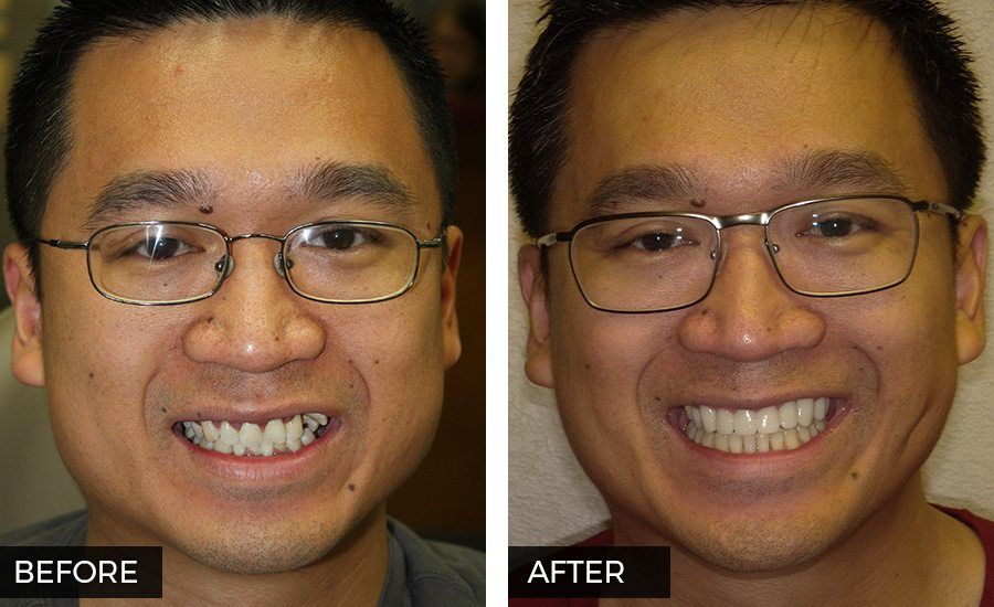 Before and After Smile Makeover