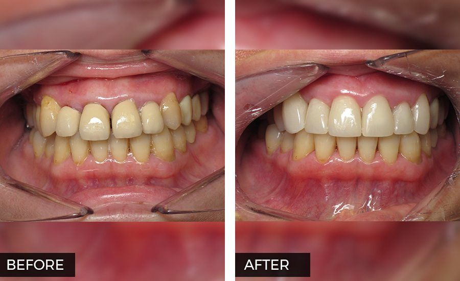 Veneers Before and After Photo