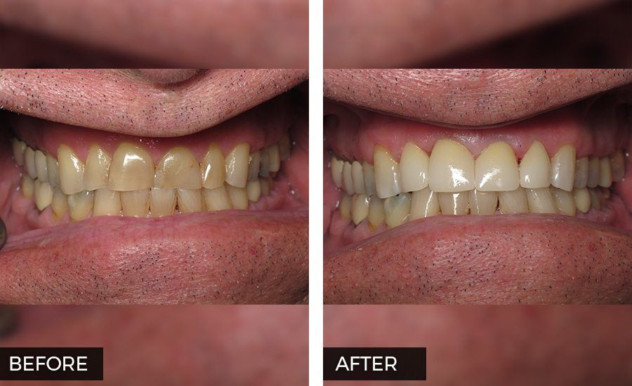 Crowns before and After Photo